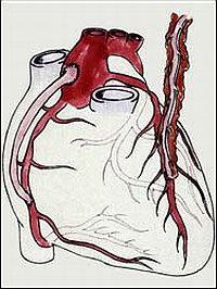 Анастомоз грудной артерии