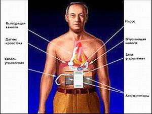 Имплантация искусственного желудочка сердца