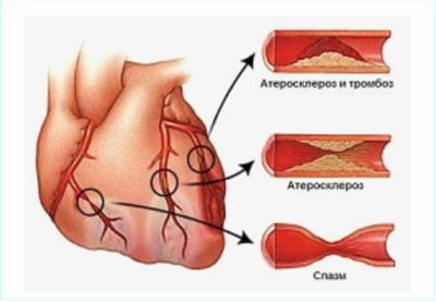 Кардиохирургические операции в Москве - показания к аорто-коронарному шунтированию