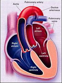 операция при отхождении аорты из правого желудочка