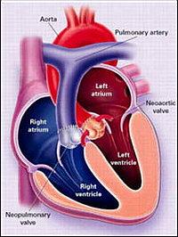 Операция при отхождении аорты из левого желудочка