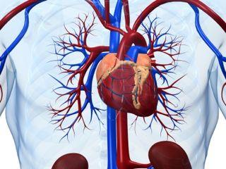 Ишемическа болезнь сердца