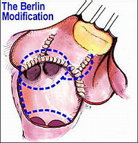 оперативное лечение мерцательной аритмии