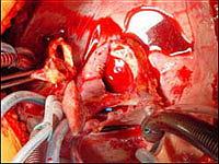 Полость перикарда после удаления больного сердца