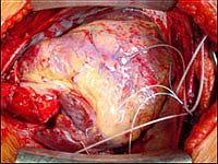 АИК отключен и сердце донора полностью переняло на себя все функции поддержки кровообращения