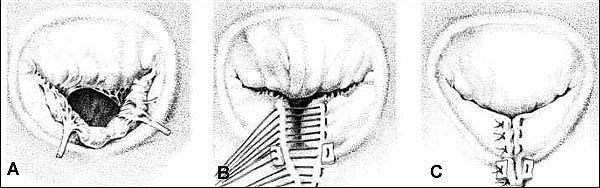 Протезирование митрального клапана по методике Гербоде