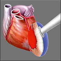Головная часть Heart Laser