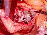 Кальцифицированный аортальный клапан